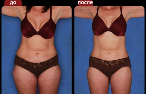 как убрать жир с ягодиц упражнения